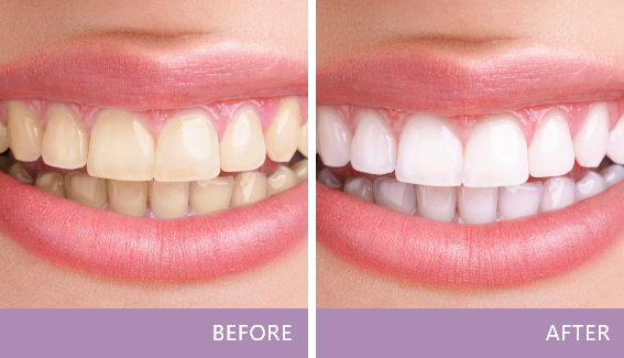 before-after-img Testimonials Montville, New Jersey